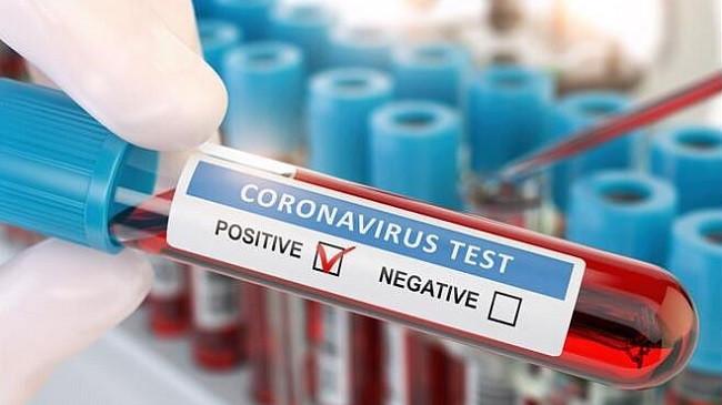 Rritet numri i të infektuarve me koronavirus në Kosovë, 148 raste të reja brenda 24 orëve